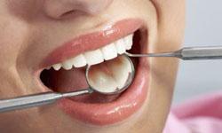 Co-op Connections Program Dental Discount